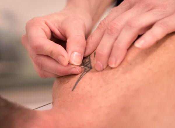 Akupunktur behandlinger Topbillede